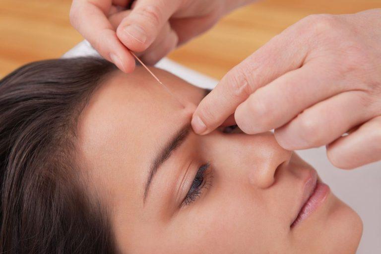 Alternative Medicine – Acupuncture Therapy Basics